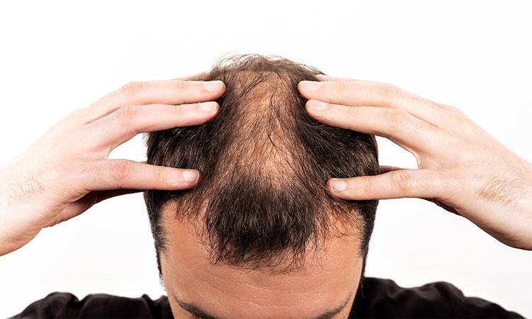 homem com as mãos na cabeça com poucos cabelos