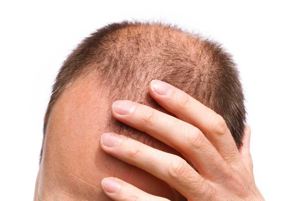 Minoxidil: conheça os efeitos na barba