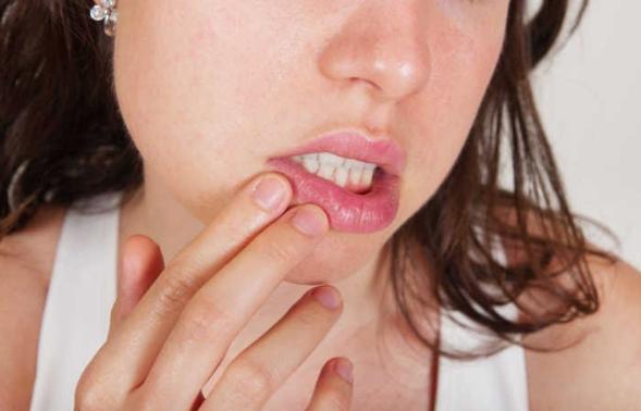 mulher com uma das mãos na boca machucada