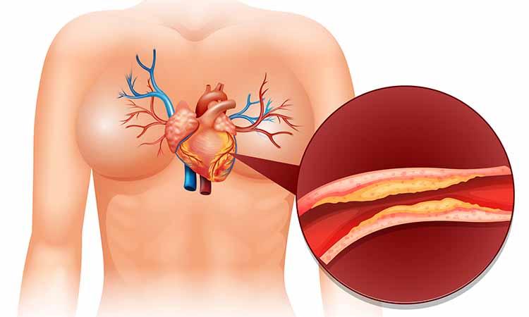 Imagem de desenho de um corpo com ênfase do coração e das vias
